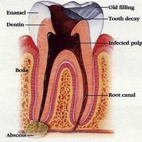 Home Remedies For Tooth Infection - Natural Treatments & Cure For Tooth Infection | Find Home Remedy