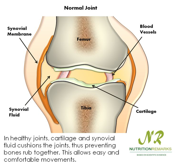 In healthy joints, cartilage and synovial fluid cushions the joints, thus preventing bones rub ...