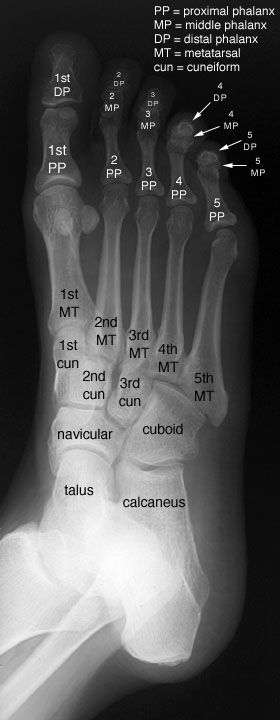Radiographic Anatomy of the Skeleton: Foot -- Oblique View, Labelled More