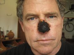 A SKIN CANCER CURE - Black Salve. EVERYONE should know about this. Lots of before, during, and after pictures.Black Salve is a soft black home-made herbal paste containing Bloodroot, Galangal, Gravioli, Chapparel, Zinc Chloride, DMSO and Glycerine that's applied directly to the actual skin cancer. More examples https://www.facebook.com/blacksalve?fref=nf