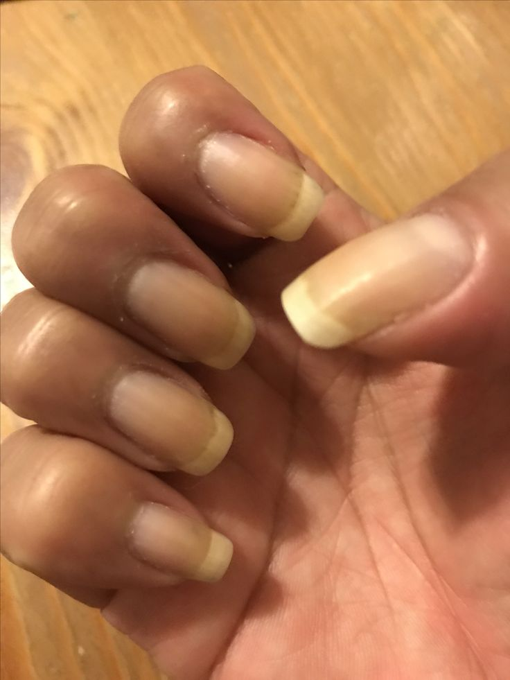 26 best Recovering from nail gels images on Pinterest | Gel nails ...