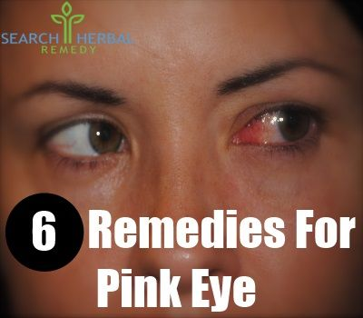 home remedies for this horrible crud! If it doesn't cure pink eye I will keep vampires and all other creatures away;)