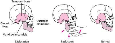 Jaw Dislocation: Urgent Dental Problems: Merck Manual Home Edition