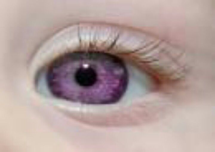 "pink eye essay Conjunctivitis, also known as pink eye, is an annoying irritating infection in you eyes that causes them to itch, burn, turn red, and even leak tears and turn cru steed conjunctivitis has a suffix that is ""it is"", meaning inflammation, irritation, and r oddness."