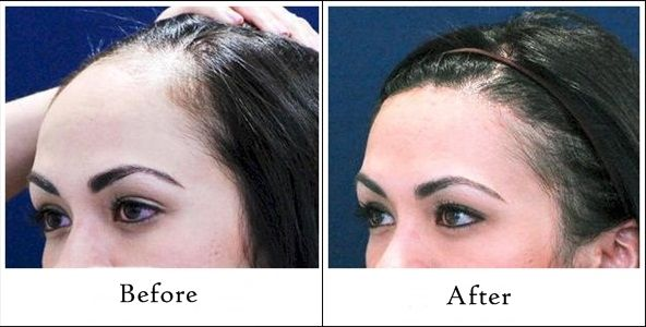 Hairnimages show you the best result of their hair transplant before and after. You can see the natural look after your hair transplant surgery and procedure.