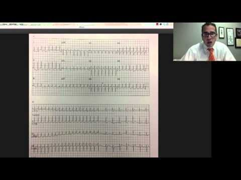 YouTube - EKG EMS Lecture Prt. 1, Dr. Carlo Oller