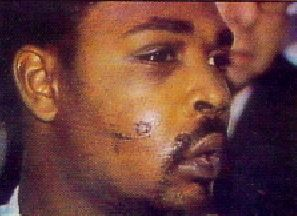 The Trials of The Los Angeles Police Officers accused in the Rodney King beating.