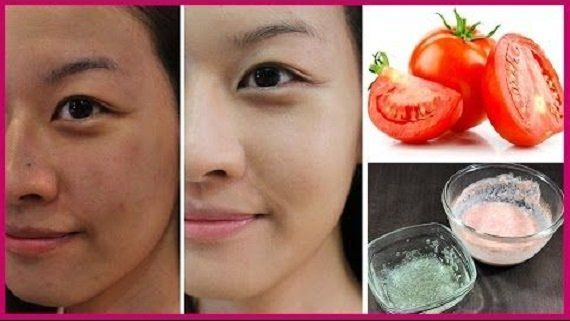 Today I will share about magical sun tan removal pack which will remove sun tan instantly and can makeyou fair in just 3 days. With this pack you will get fair, spotless and glowing skin. And this is 100%naturally homemade with no side effects. For best results do this 2-3 times in a week. Ingredients, …