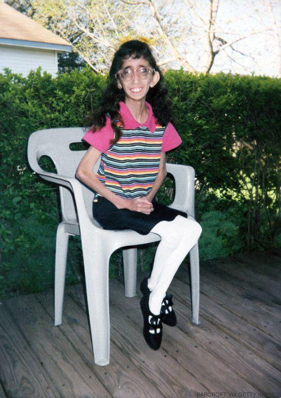 Como ter sido chamada de a mulher mais feia do mundo mudou a vida de Lizzie Velasquez
