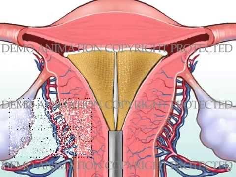 NovaSure Endometrial Ablation with Post-Op Bleeding