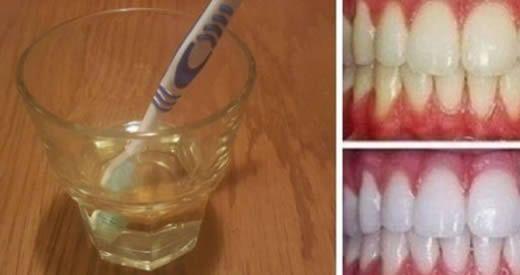 sbiancare denti aceto di mele
