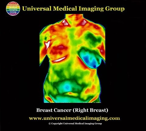 http://www.universalmedicalimaging.com/thermography.htmlThermography