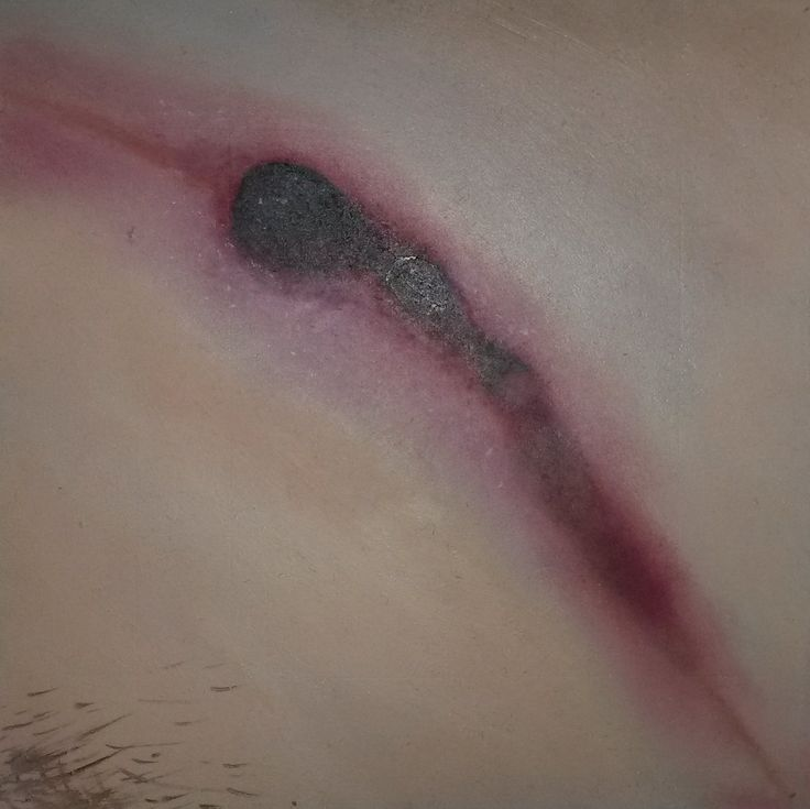 Artist: Ilandi Barkhuien Zoomed in oil painting of sores and cuts