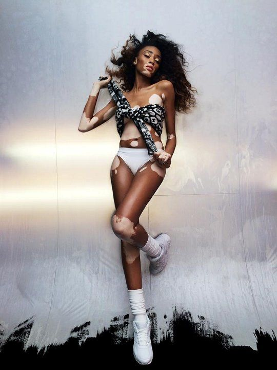 Image result for pictures of Winnie harlow