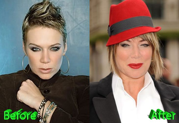 Most of the gossips comes from people that think Mia Michaels looks young for her age. So the topic of this article is Mia Michaels Plastic Surgery rumors and gossips.