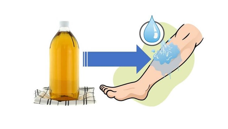 Dolegliwości takie jak obrzęki nóg zazwyczaj przypominają o sobie podczas upałów. Poznaj 10 domowych sposobów, jak się ich pozbyć.