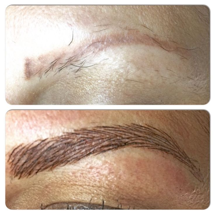 Perfect, 3D, Permanent Eyebrow tattoo using a microblade technique! Visit us at www.secondskinmedspa.com