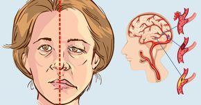 Las mujeres son más propensas a sufrir accidentes cerebrovasculares Los accidentes cerebrovasculares son la tercera causa principal de muerte en las mujeres. La American Stroke Association informa que cerca del 60% de las muertes por apoplejía ocurren en mujeres, lo que significa que las mujeres tienen más probabilidades de tener apoplejías que los hombres. No sólo eso, las mujeres son menos propensas a reconocer los signos de accidente cerebrovascular o a recibir atención médica inmediata…
