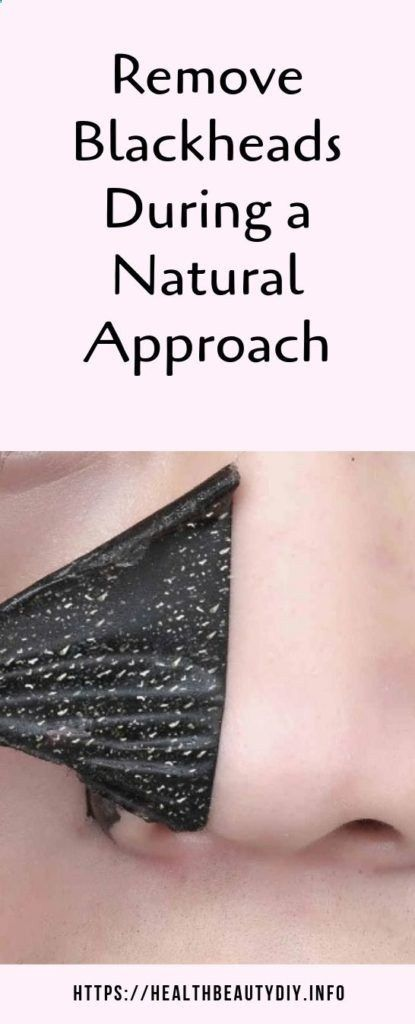 Remove Blackheads During a Natural Approach #blackheadsremoval #blackheads #skin #skincare