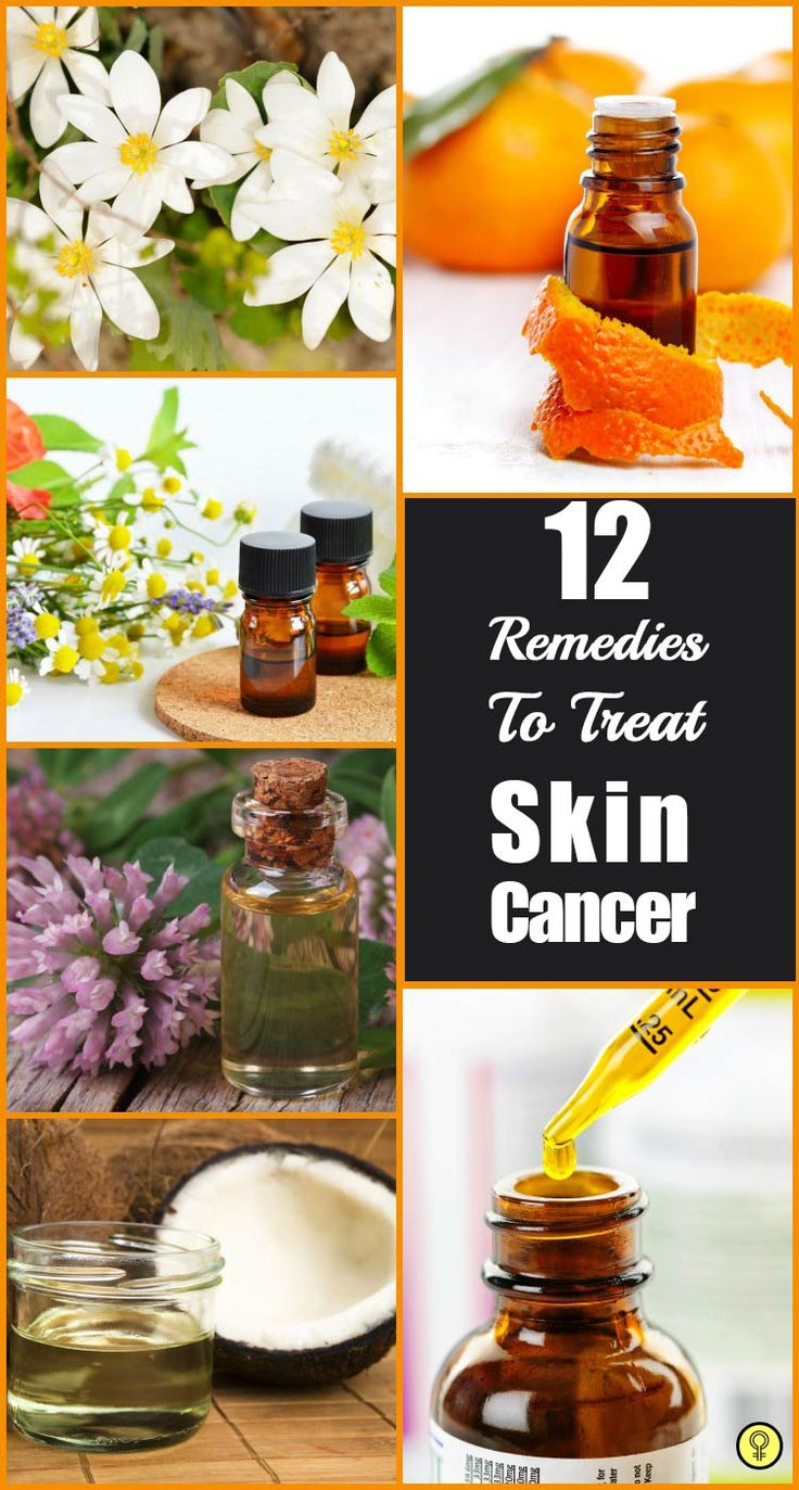 If cancer is detected at an early stage, it can be cured with natural alternative treatments. Here are simple home remedies for skin cancer that work well to battle out this dreadful disease