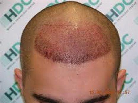 Best ILHT Dubai Hair Transplant Images On Pinterest Dubai - Custom vinyl decal application fluidhow to make decal application fluidhair loss surgery