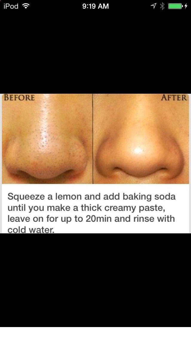 Skin care: Black head mask - where was this idea when I was 16????