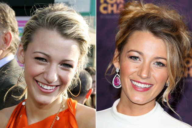 Blake Lively Nose Job Before And After HOLLYWOOD - MAY 31: Actress Blake Lively arrives at the premiere of 'The Sisterhood of the Traveling Pants' at The Grauman's Chinese Theatre on May 31, 2005 in Hollywood, California. (Photo by Frazer Harrison/Getty Images) / LONDON, ENGLAND - JUNE 01: Blake Lively poses backstage in the media room at the 'Chime For Change: The Sound Of Change Live' Concert at Twickenham Stadium on June 1, 2013 in London, England. Chime For Change is a global campaign…