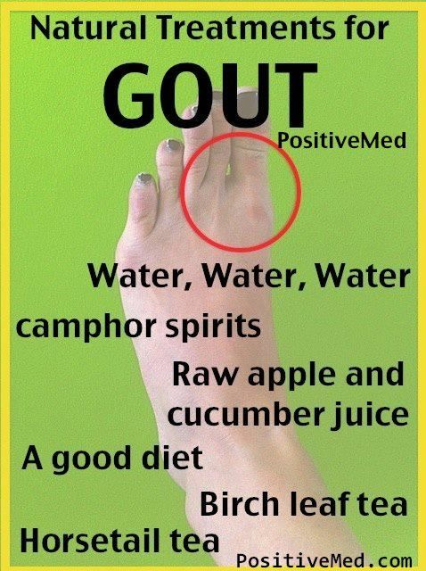 natural gout treatment in ayurveda gout natural remedies cherries high blood pressure medication causing gout