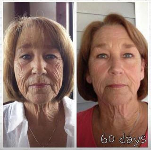 Look at these results!  Any age, any skin type! Wow 60 days!   Http://sanahlyles.nerium.com #NeriumwithSanah