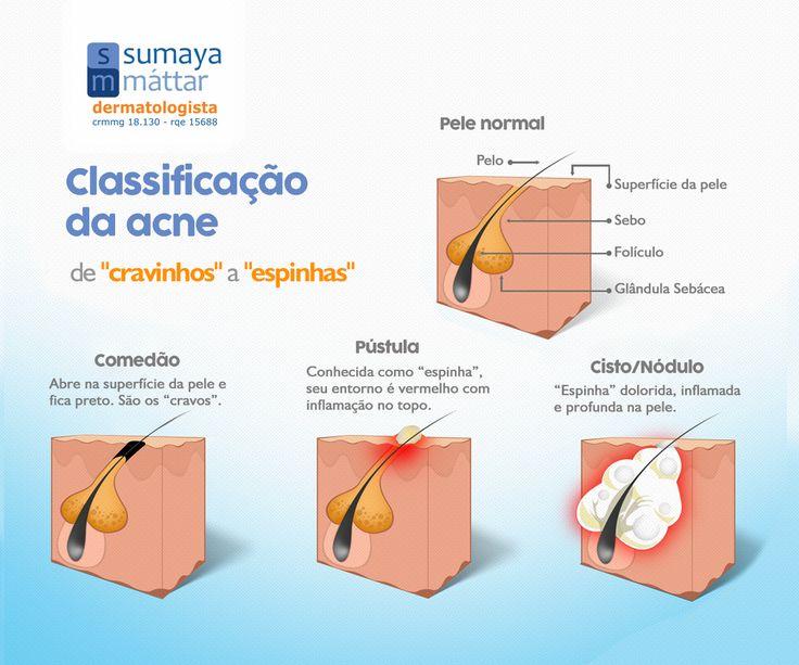 """A acne é uma dermatose que provoca o surgimento de comedões (""""cravos""""), pústulas (""""espinhas"""") e pápulas (""""espinhas sem pus""""), podendo causar também cistos e nódulos, que são lesões mais profundas e doloridas.O tratamento é fundamental para controlar o quadro e evitar manchas e cicatrizes. É muito importante que o paciente busque cuidados com um dermatologista, independentemente da idade. Leia mais em: http://sumayamattar.med.br/patologias/acne."""