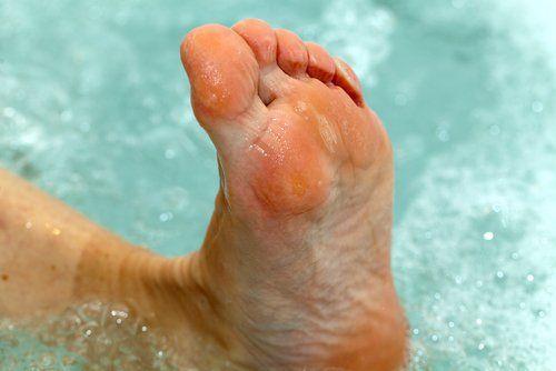 Tratar el pie de atleta