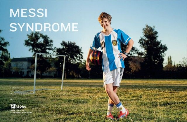 Down Syndrome Campaign by TBWA_4