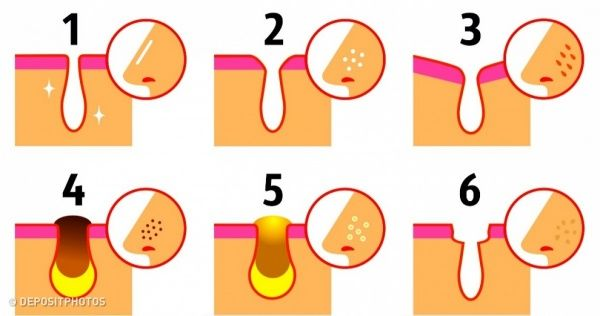 5 Natural Ways to Unclog Different Types of Skin Pores