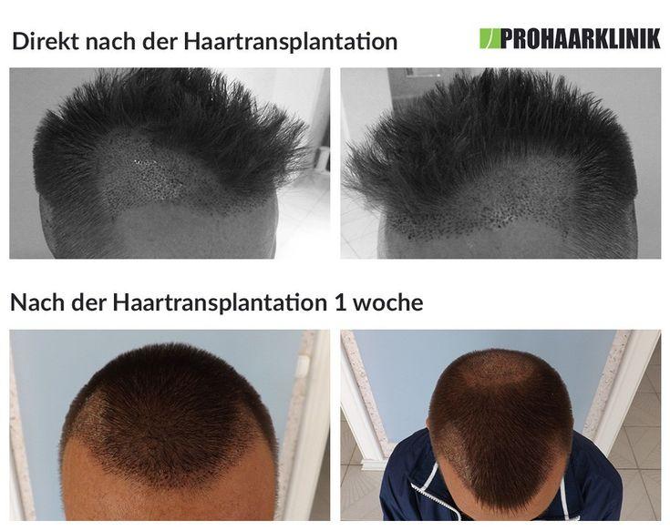 Haare implantieren geheimratsecken kosten