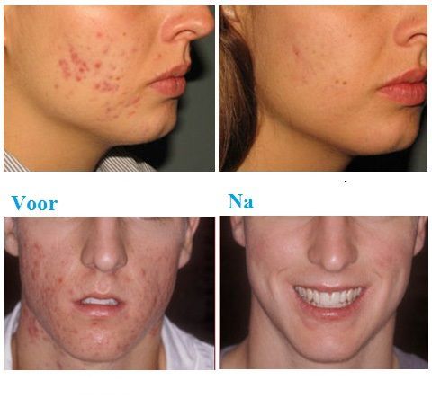 Salicylzuur Peeling: In tegenstelling tot glycolzuur, is salicylzuur een middel dat vet (talg) oplost en poriën reinigt. Salicylzuur lost eiwitten op, die verantwoordelijk zijn voor de hechting van huidcellen. Hierdoor laten de buitenste huidcellen los van de huid.