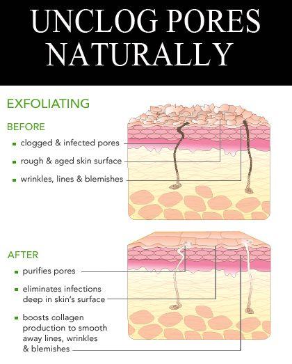 how to make pores smaller naturally