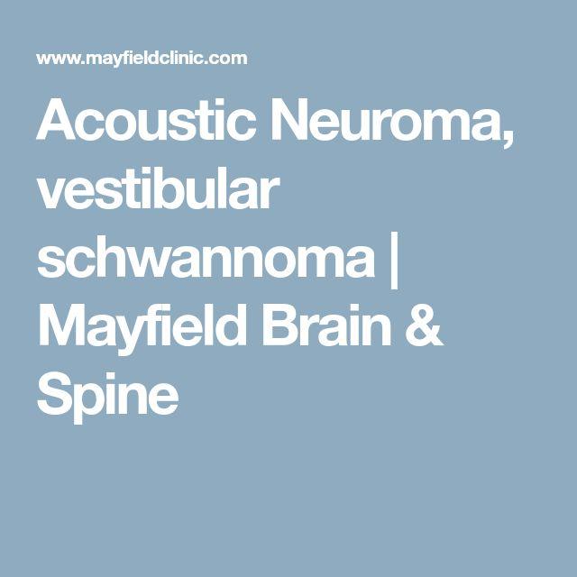 Acoustic Neuroma, vestibular schwannoma | Mayfield Brain & Spine