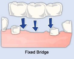 Safe Dental Treatments from Top Brampton Cosmetic Dentist.