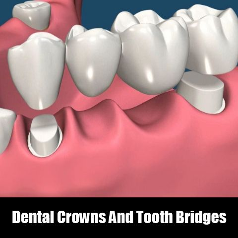 Dental Crowns And Tooth Bridges Porcelain Fixed Bridges are the best treatment for damaged teeth because they closely replicate the look and feel of natural teeth. #Dentalcrowns #Toothbridges #Tooth
