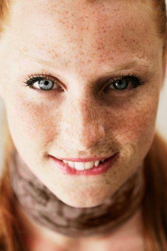 Пигментные пятна на лице: удаление и профилактика