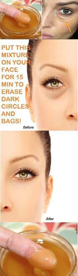 PUT THIS MIXTURE ON YOUR FACE FOR 15 MIN TO ERASE DARK CIRCLES AND BAGS! – Lifee Too