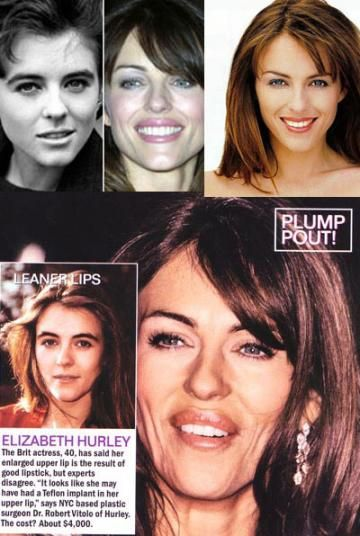 Chatter Busy: Elizabeth Hurley Plastic Surgery
