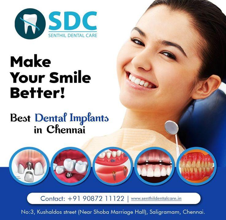 Make Your Smile Better! in 2020 Best dental implants