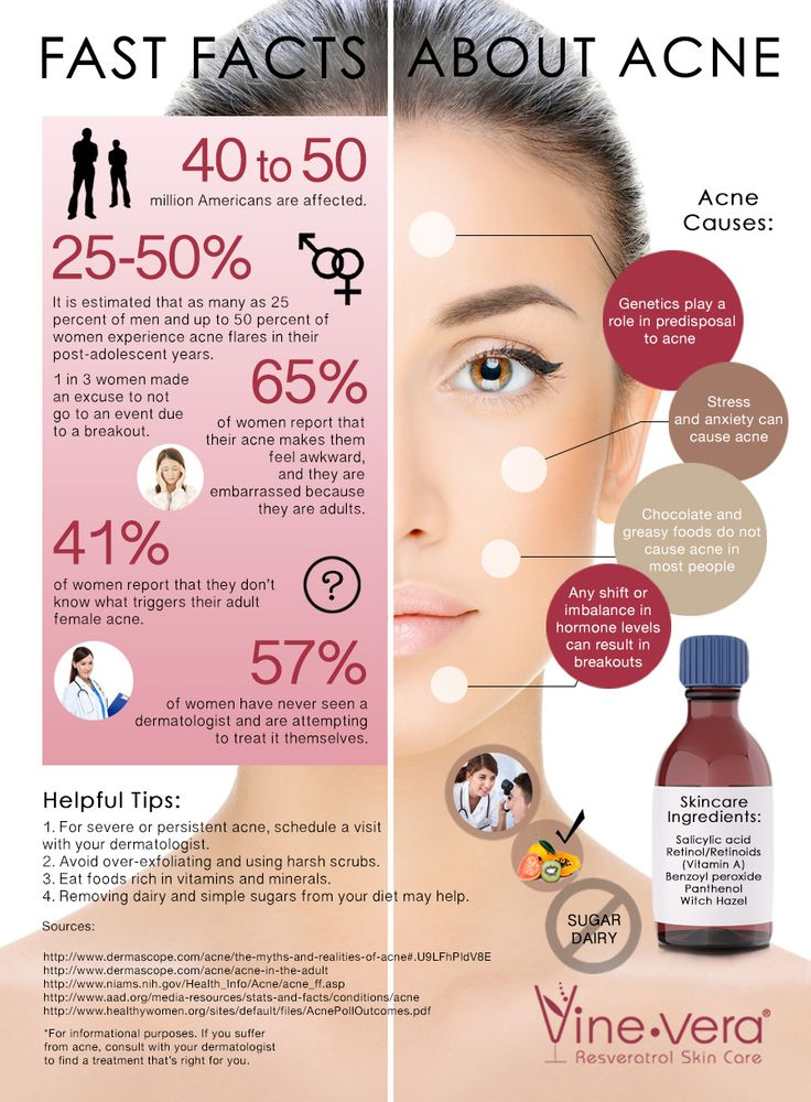 Fast Facts about Acne from Vine Vera
