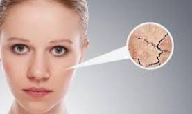 perawatan wajah kering
