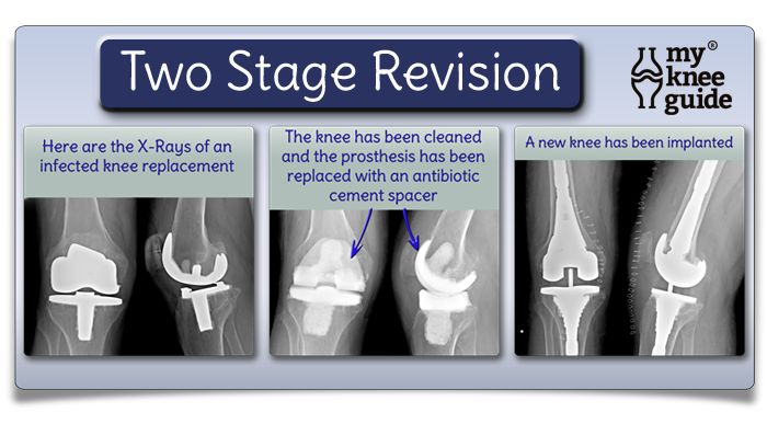 Two stage revision surgery to treat an infected knee replacement is described.  The success rate is...