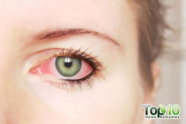 Home Remedies for Allergic Conjunctivitisigeenell timmons