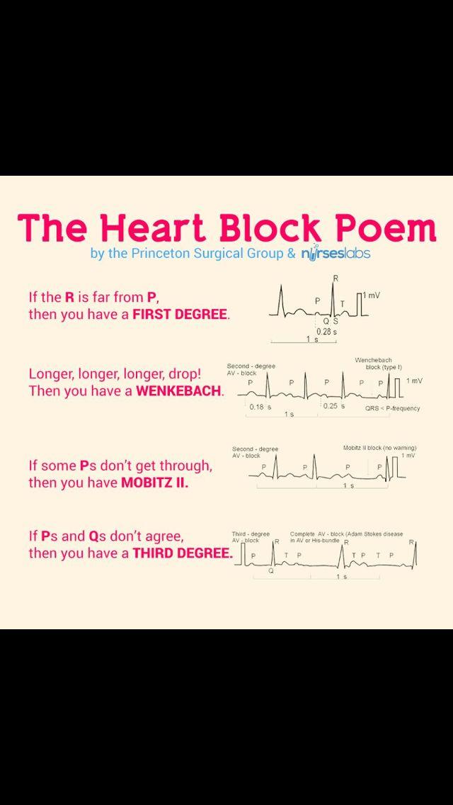 How to Identify Cardiac Arrhythmias (With Videos