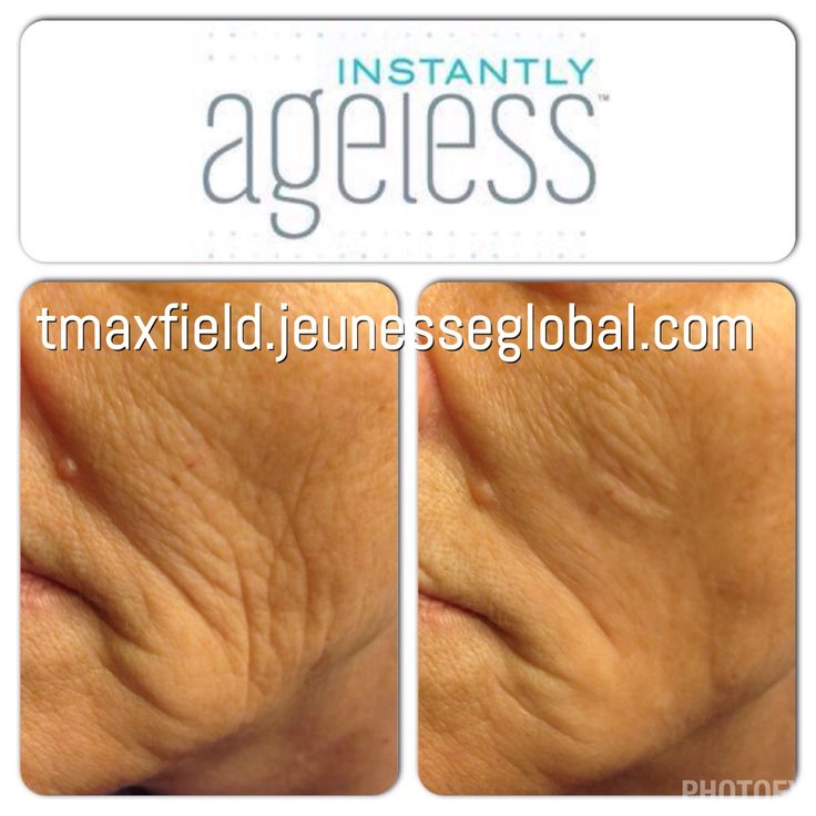 Instantly Ageless by Jeunesse   Take 10 years off in 2 minutes! My mom's 2 minute results  Skin care, anti aging, wrinkles, Botox alternative tmaxfield.jeunesseglobal.com
