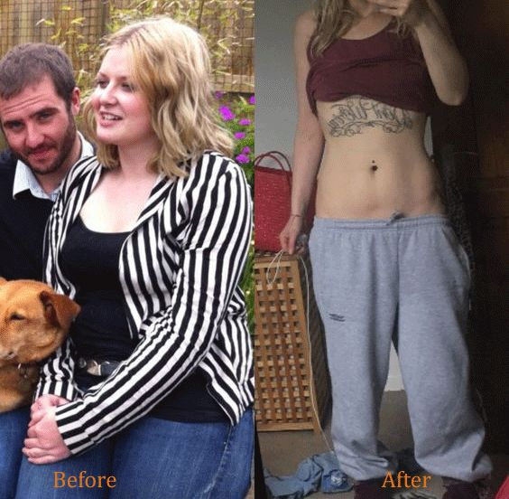 Military Diet Before and After Pictures. Find the 3 Day Military Diet Results and Success Stories.